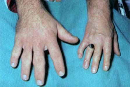 Аденома гипофиза симптомы акромегалия