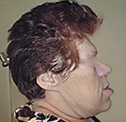 акромегалия внешность больного