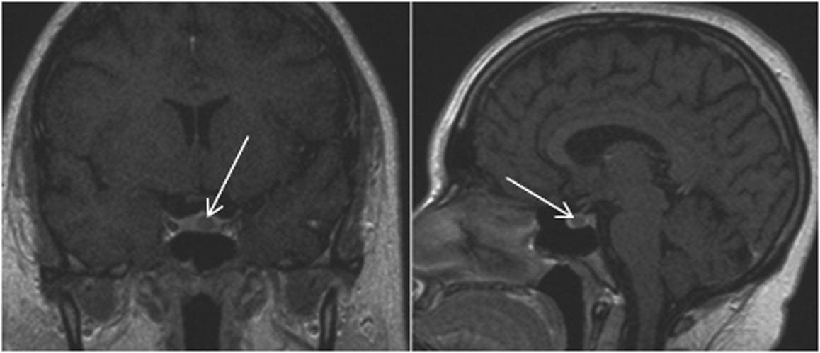 МРТ микроаденома бик с контрастом