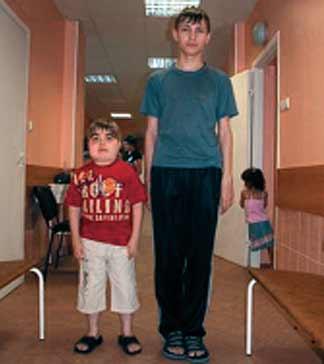 Аденома гипофиза у детей