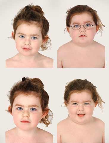 Болезнь Иценко-Кушинга у детей
